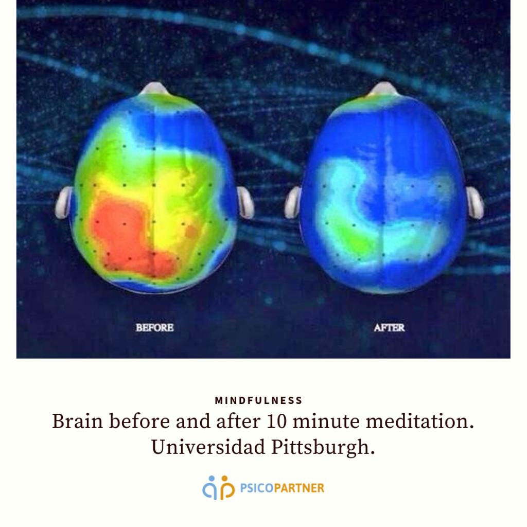 Cerebro antes y después de meditar